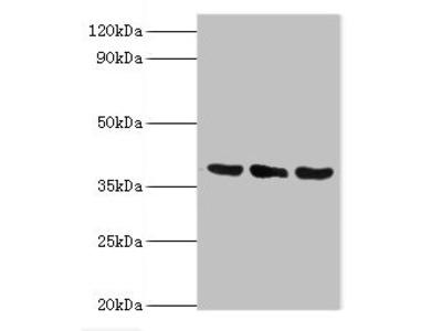 Rabbit anti-human TMOD3 polyclonal Antibody