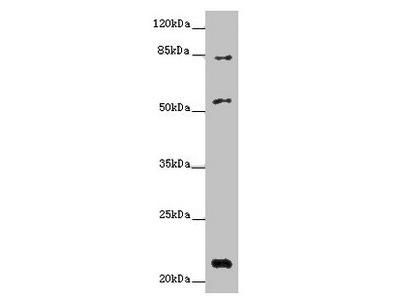 PYHIN1 Antibody