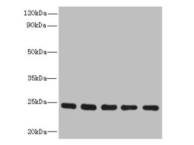 RAB6B Antibody