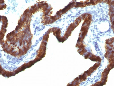 Cytokeratin 7 (KRT7) (Glandular and Transitional Epithelial Marker)