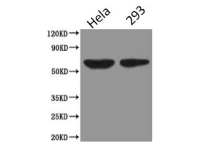 Podocalyxin; GCTM-2 antigen; Gp200; PC; PODXL; PCLP; PCLP1