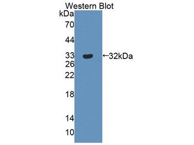 Constitutive Androstane Receptor (CAR) Polyclonal Antibody
