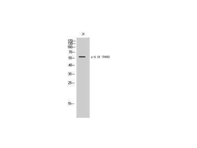 Phospho-4.1R (Y660) Polyclonal Antibody