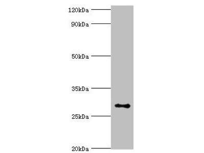 Rabbit anti-human Alpha-ketoglutarate-dependent dioxygenase alkB homolog 2 polyclonal Antibody(ALKBH2)