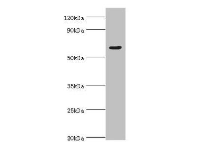 Rabbit anti-human TATA box-binding protein-associated factor RNA polymerase I subunit B polyclonal Antibody(TAF1B)