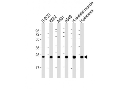 UQCRFS1P1 Antibody (Center)