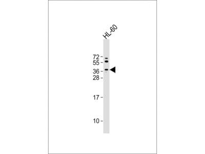 (Mouse) Trex2 Antibody (C-term)