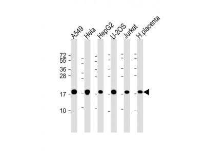 COMMD1 Antibody (N-Term)