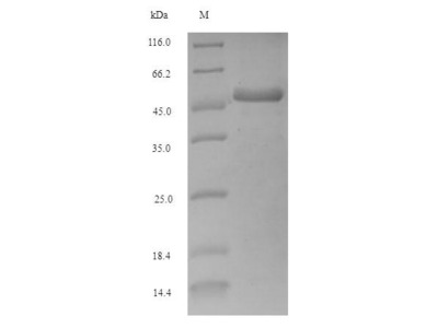 Recombinant Escherichia coli (strain K12) Adenosine deaminase
