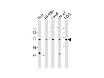CERS4 Antibody (N-Term)