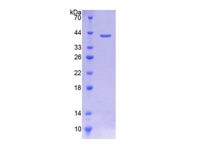 Recombinant Choline Transporter Like Protein 1 (CTL1)