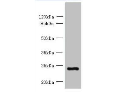 PQLC3 Antibody