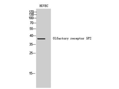 Olfactory receptor 5P2 Polyclonal Antibody