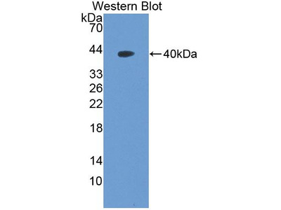 Nucleosome Assembly Protein 1 Like Protein 1 (NAP1L1) Polyclonal Antibody