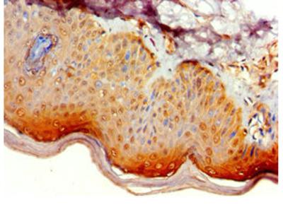 Rabbit anti-human Beclin 1-associated autophagy-related key regulator polyclonal Antibody(ATG14)