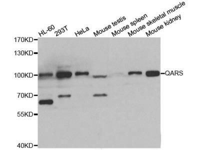 QARS Polyclonal Antibody