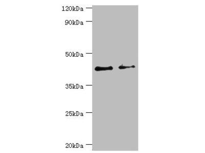 Rabbit anti-human Branched-chain-amino-acid aminotransferase, mitochondrial polyclonal Antibody(BCAT2)