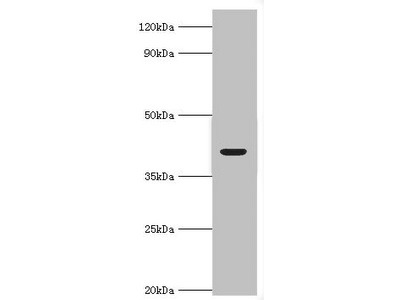 Rabbit anti-human Alcohol dehydrogenase 4 polyclonal Antibody(ADH4)