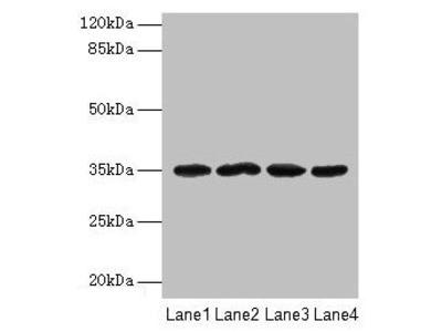 Rabbit anti-human Meteorin-like protein polyclonal Antibody