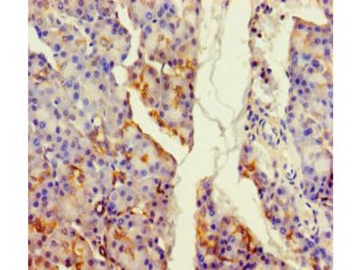 ALDH1L2 Antibody