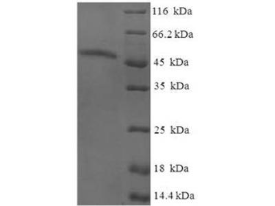Recombinant Human AKT-interacting protein