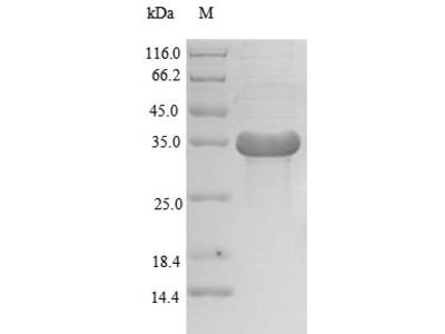 Recombinant Human Transcription activator BRG1