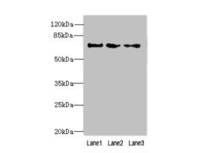 Rabbit anti-human Peptidyl-prolyl cis-trans isomerase-like 4 polyclonal Antibody(PPIL4)