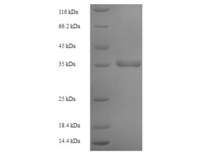 Recombinant Human Protein Mpv17