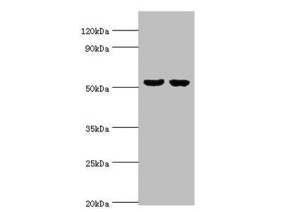 Rabbit anti-human Cytosolic beta-glucosidase polyclonal Antibody(GBA3)