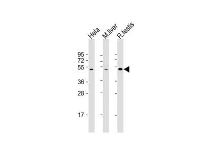 CHRNB2 Antibody (N-Term)