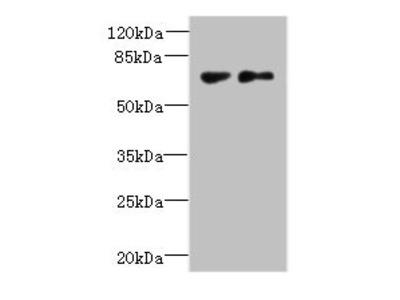 TTC30B Antibody