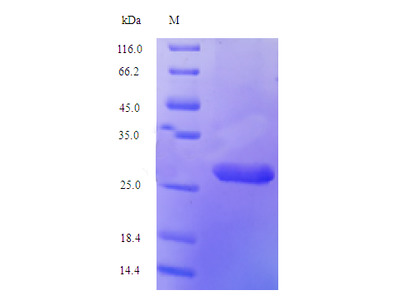 Recombinant Human Histone H2A.V