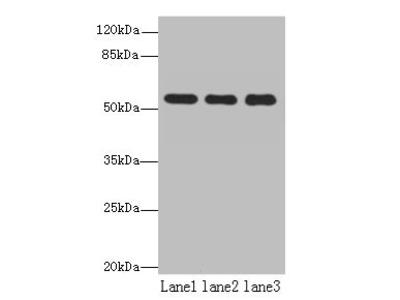 TBC1D22A Antibody