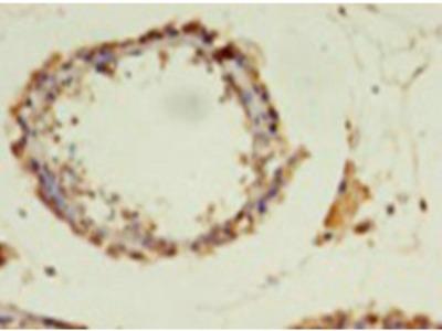 Rabbit anti-human DNA-directed RNA polymerase III subunit RPC1 polyclonal Antibody(POLR3A)