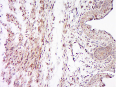 SOCS7 Antibody