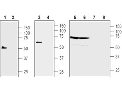 Anti-NIPAL4 (extracellular) Antibody