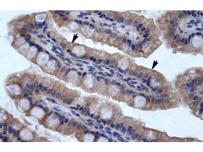 SMPDL3B Polyclonal Antibody