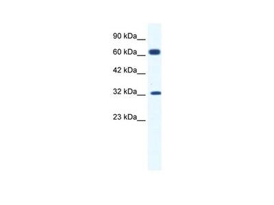 KCNN1 Polyclonal Antibody