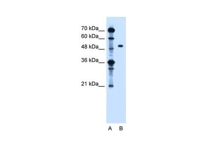 ZFYVE27 Polyclonal Antibody