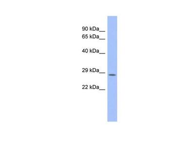 PSMB10 Polyclonal Antibody