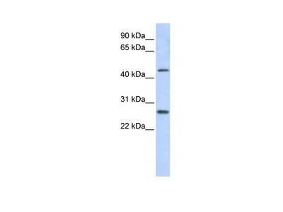 PRAMEF10 Polyclonal Antibody