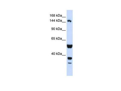 ABI3BP Polyclonal Antibody