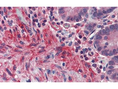 PRDM5 Polyclonal Antibody