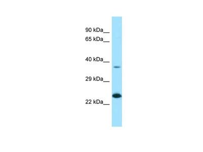 UCC1 Polyclonal Antibody