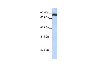 TAF1C Polyclonal Antibody