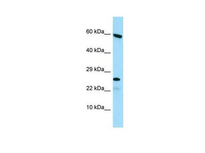 HGSNAT Polyclonal Antibody