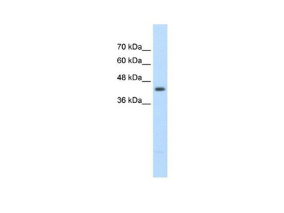 UPB1 Polyclonal Antibody