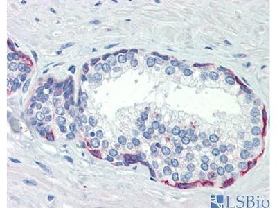 PLEKHH2 Polyclonal Antibody