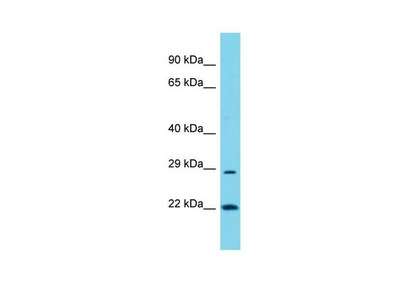 POLR3G Polyclonal Antibody