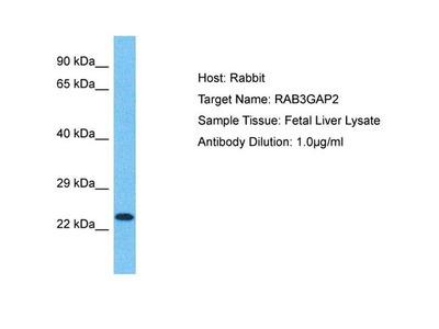 RAB3GAP2 Polyclonal Antibody